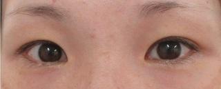 秋葉原美容クリニックの二重まぶた切開法+目頭切開の症例写真(ビフォー)