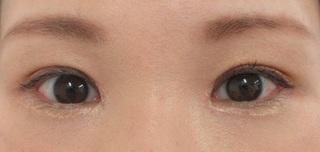秋葉原美容クリニックの二重まぶた切開法+目頭切開の症例写真(アフター)