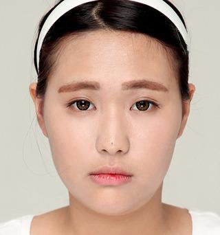 ITEM美容(整形)外科の二重整形の症例写真(ビフォー)