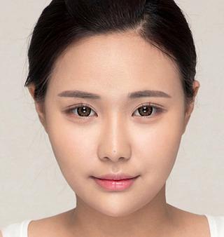 ITEM美容(整形)外科の二重整形の症例写真(アフター)