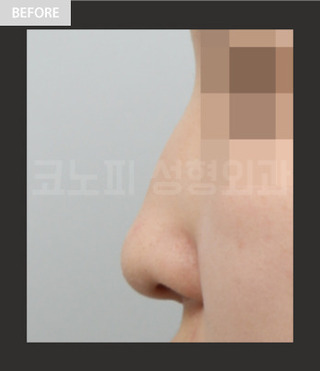 CONOPI (コノピ)整形外科の鷲鼻整形(無プロテーゼ)の症例写真(ビフォー)