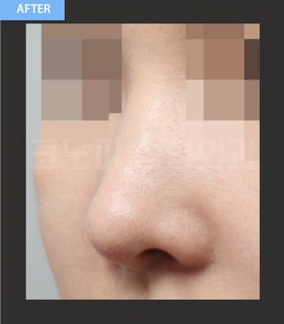 CONOPI (コノピ)整形外科の鷲鼻整形(無プロテーゼ)の症例写真(アフター)