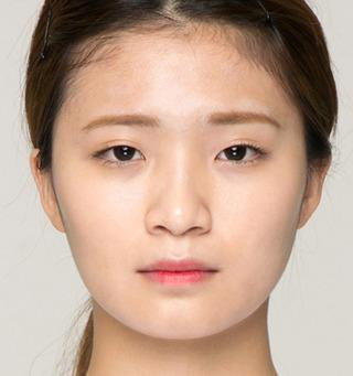 ITEM美容(整形)外科の鼻整形 / 二重整形の症例写真(ビフォー)
