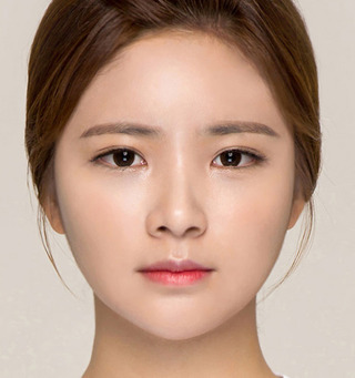 ITEM美容(整形)外科の鼻整形 / 二重整形の症例写真(アフター)