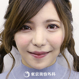 東京美容外科 東京新宿院のオルチャンリフトの症例写真(アフター)