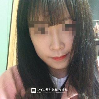 マイン整形外科・皮膚科の鼻整形+脂肪移植の症例写真(アフター)