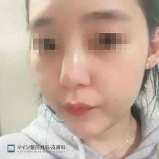 マイン整形外科・皮膚科の鼻整形の症例写真(ビフォー)