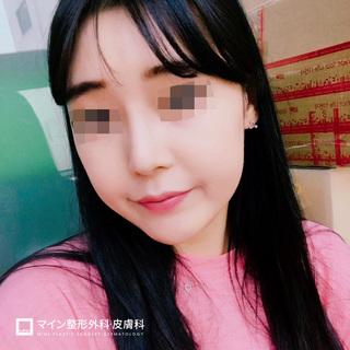 マイン整形外科・皮膚科の鼻整形の症例写真(アフター)