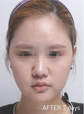 もとび美容外科クリニック新宿院のBNLSneo 脂肪溶解注射の症例写真(アフター)
