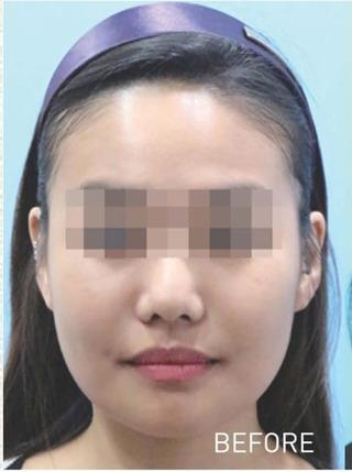 もとび美容外科クリニック新宿院のBNLSneo 脂肪溶解注射の症例写真(ビフォー)