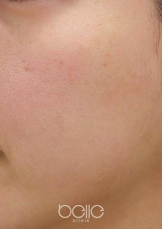 ベル美容外科クリニックのフォトシルクプラスの症例写真(ビフォー)