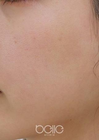 ベル美容外科クリニックのフォトシルクプラスの症例写真(アフター)