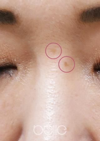ベル美容外科クリニックのシミ取りレーザーの症例写真(ビフォー)