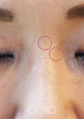 ベル美容外科クリニックのシミ取りレーザーの症例写真(アフター)