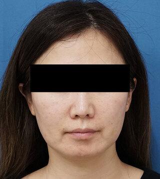 もとび美容外科クリニック新宿院のHIFUの症例写真(ビフォー)