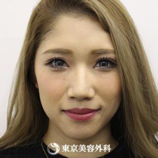 東京美容外科 東京新宿院のオルチャンリフトの症例写真(ビフォー)