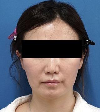 もとび美容外科クリニック新宿院のHIFUの症例写真(アフター)