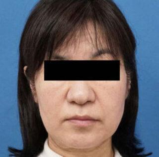 もとび美容外科クリニック新宿院のハイフとBNLSの症例写真(ビフォー)