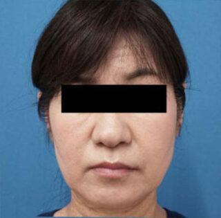 もとび美容外科クリニック新宿院のハイフとBNLSの症例写真(アフター)
