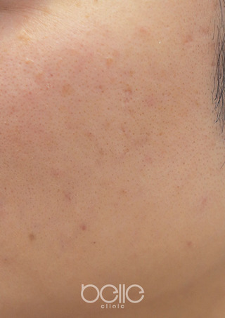 ベル美容外科クリニックのレーザートーニングの症例写真(ビフォー)