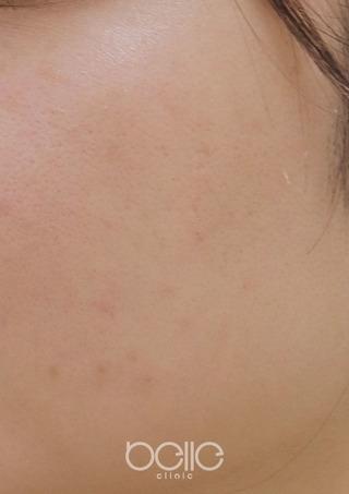 ベル美容外科クリニックのレーザートーニングの症例写真(アフター)