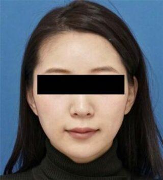 もとび美容外科クリニック新宿院のあごヒアルロン酸(クレヴィエル)の症例写真(アフター)