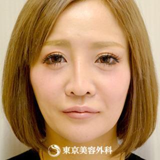 東京美容外科 大阪梅田院のオルチャンリフトの症例写真(ビフォー)