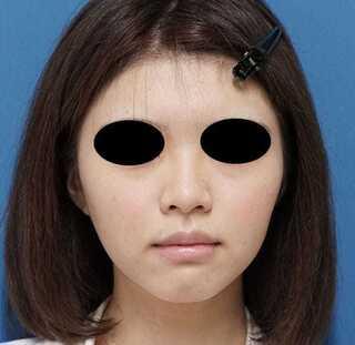 もとび美容外科クリニック新宿院のあごヒアルロン酸(クレヴィエル)の症例写真(ビフォー)