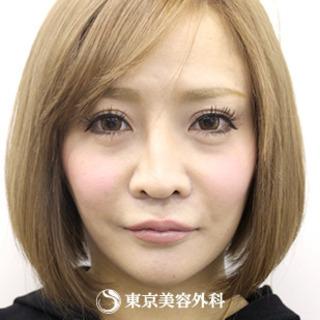 東京美容外科 大阪梅田院のオルチャンリフトの症例写真(アフター)