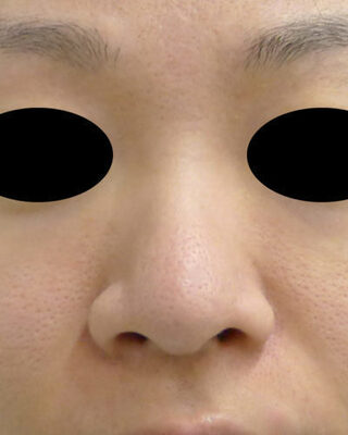 もとび美容外科クリニック新宿院の小鼻縮小(内側法+外側法)の症例写真(ビフォー)