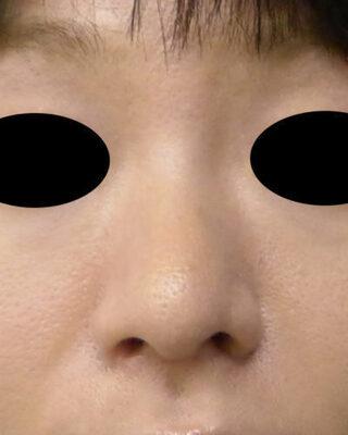 もとび美容外科クリニック新宿院の小鼻縮小(内側法+外側法)の症例写真(アフター)