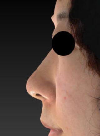 もとび美容外科クリニック新宿院のミスコ(MISKO)の症例写真(アフター)