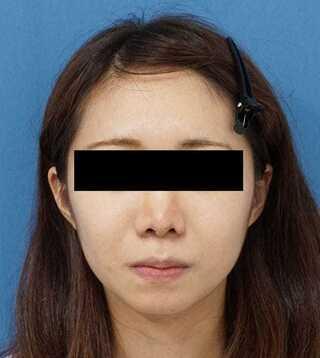 もとび美容外科クリニック新宿院のクレヴィエルコントア(あご)の症例写真(ビフォー)