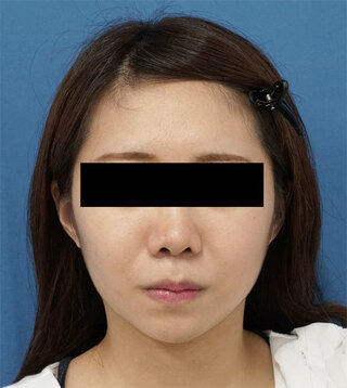 もとび美容外科クリニック新宿院のクレヴィエルコントア(あご)の症例写真(アフター)