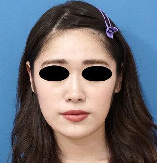 もとび美容外科クリニック新宿院のクレヴィエルコントアの症例写真(アフター)