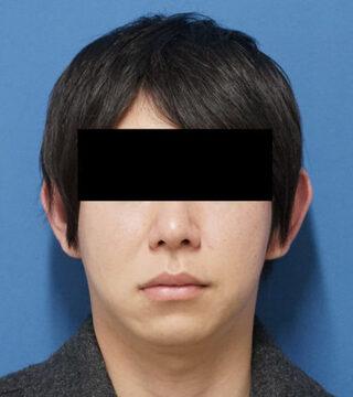 もとび美容外科クリニック新宿院のクレヴィエルコントア(鼻)の症例写真(ビフォー)