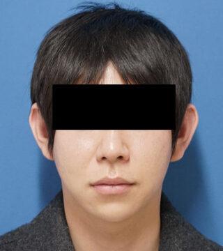 もとび美容外科クリニック新宿院のクレヴィエルコントア(鼻)の症例写真(アフター)