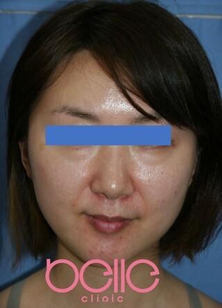ベル美容外科クリニックのFGF注入(目の下+法令線)の症例写真(ビフォー)