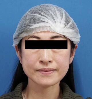もとび美容外科クリニック新宿院のミントリフトミ二12本の症例写真(ビフォー)