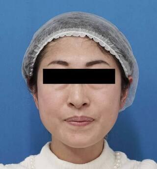 もとび美容外科クリニック新宿院のミントリフトミ二12本の症例写真(アフター)