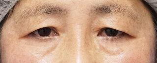 もとび美容外科クリニック新宿院の眉下切開の症例写真(ビフォー)