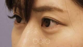 ベル美容外科クリニックのヒアルロン酸(涙袋)の症例写真(アフター)