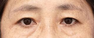 もとび美容外科クリニック新宿院の眉下切開の症例写真(アフター)