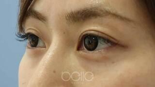 ベル美容外科クリニックのヒアルロン酸(涙袋)の症例写真(ビフォー)