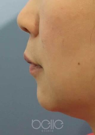 ベル美容外科クリニックのヒアルロン酸(あご)の症例写真(ビフォー)