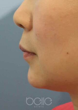 ベル美容外科クリニックのヒアルロン酸(あご)の症例写真(アフター)