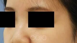 ベル美容外科クリニックのヒアルロン酸(鼻)の症例写真(ビフォー)
