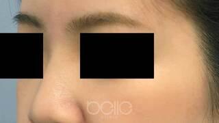 ベル美容外科クリニックのヒアルロン酸(鼻)の症例写真(アフター)