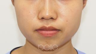 ベル美容外科クリニックのボトックス(エラ)の症例写真(ビフォー)