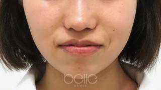 ベル美容外科クリニックのボトックス(エラ)の症例写真(アフター)
